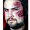 Scar Set #5 - 2Pc Outbreak Rash